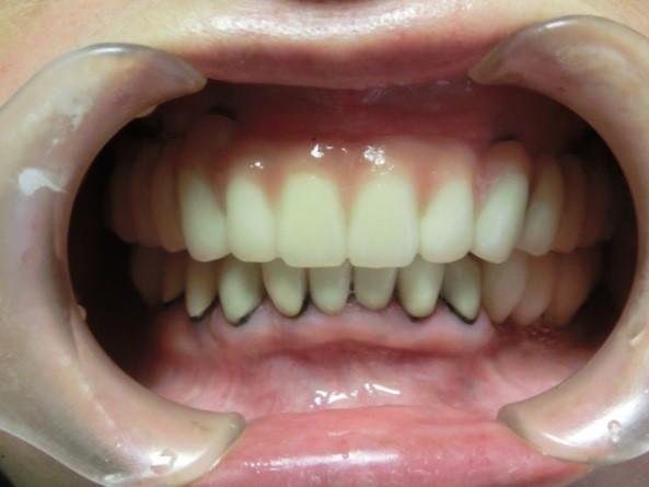 入れ歯をインプラントに