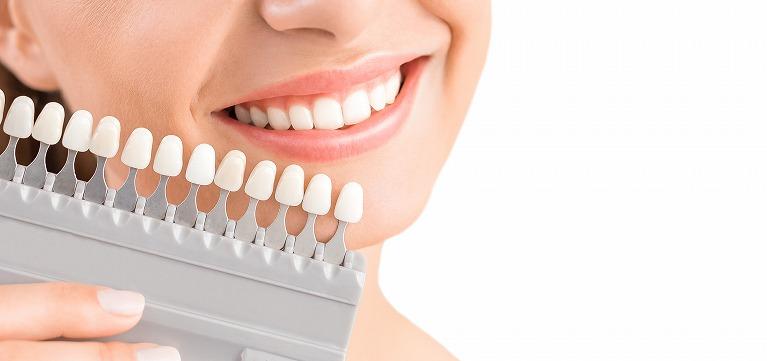 ホワイトニングで歯を白くする