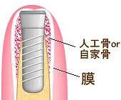 失われた歯周組織の回復