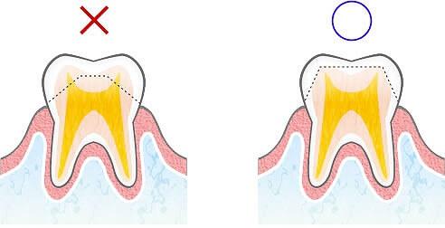 セラミック歯にすると歯が弱くなるとききましたが。