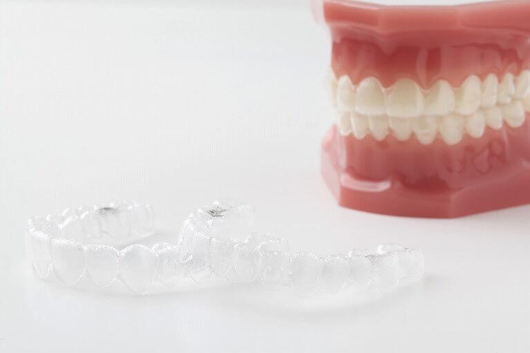 「インビザライン」(マウスピース型矯正歯科装置)について