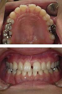 正中離開(前歯の隙間)の改善